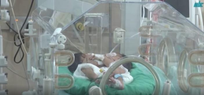Les jumelles siamoises : Première intervention au niveau du cœur réussie