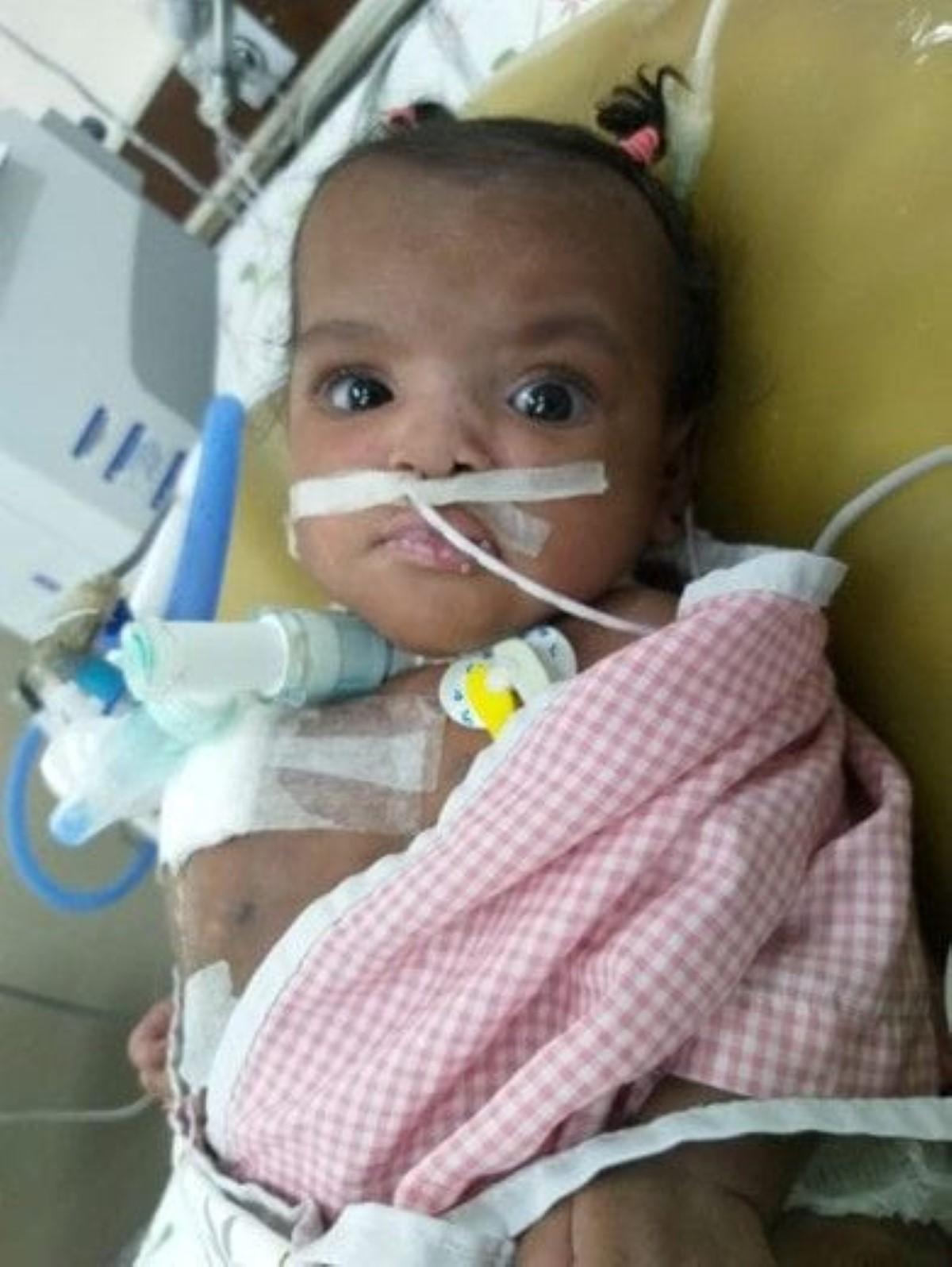 Jumelle siamoise : Marie-Cléanne Papillon, troisième bébé miracle au monde de la chirurgie