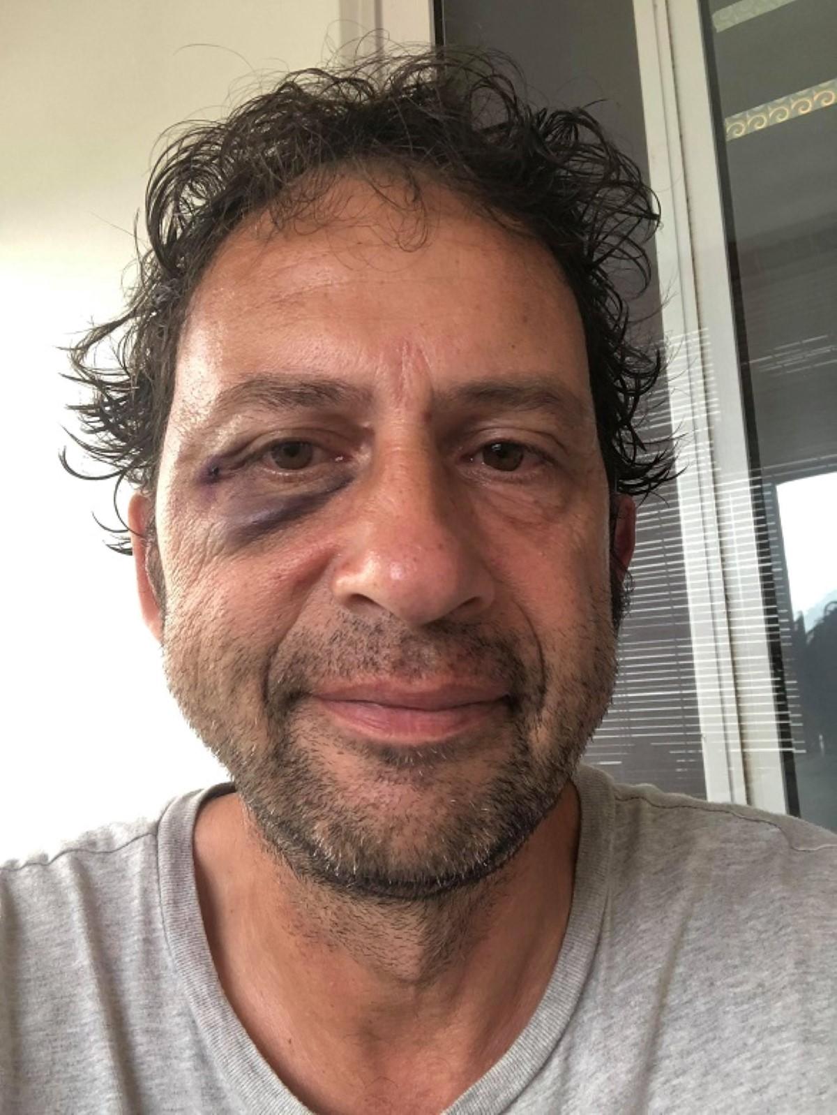 Léonard Odier, rédacteur en chef de France Mayotte victime d'agression à Port-Louis