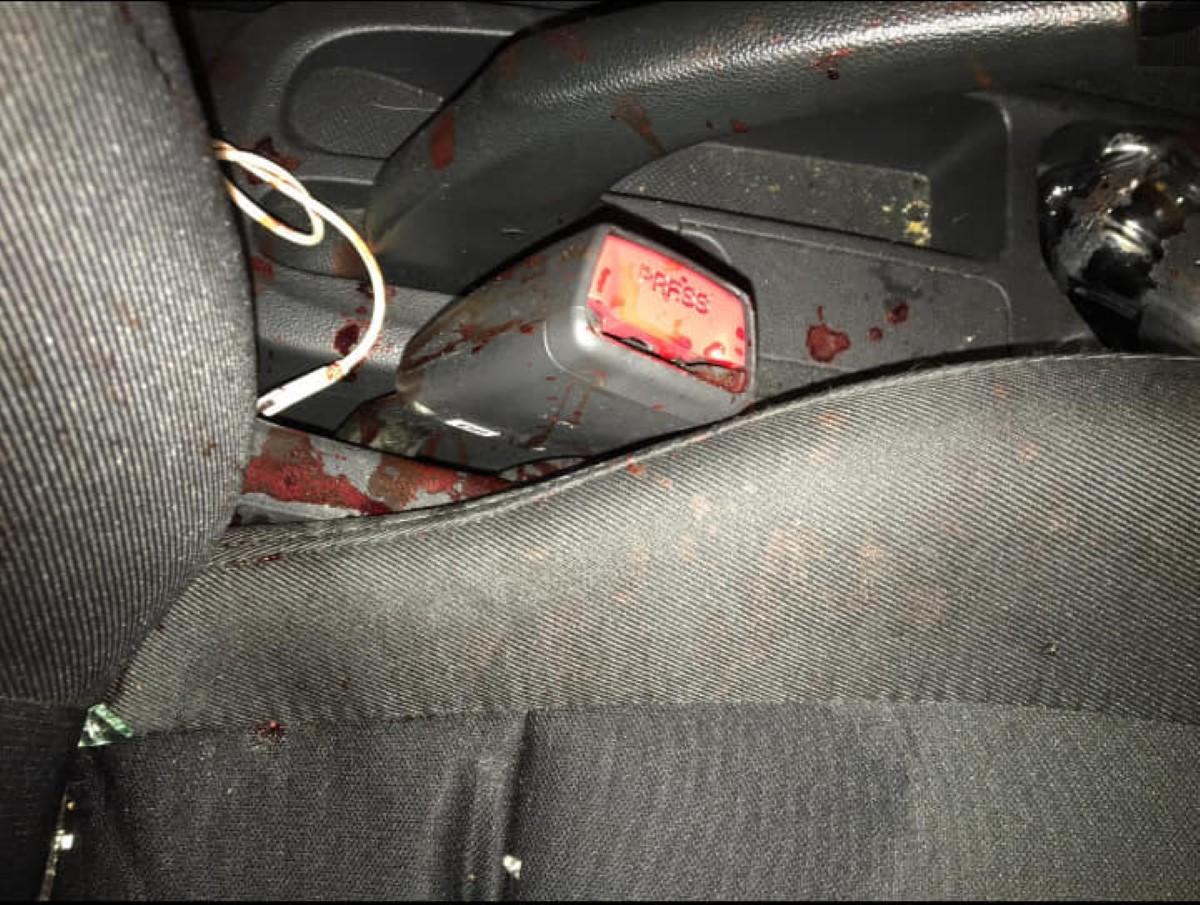 Atteint de deux balles, Manan Fakoo s'est rendu à l'hôpital à bord de sa voiture