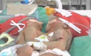 Les jumelles siamoises sont fusionnées et reliées par deux coeurs !