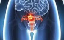 120 cas de cancer du col de l'utérus enregistrés chaque année à Maurice