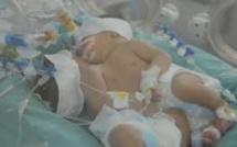 Bébés siamois : La maman veut elle-aussi se rendre en Inde